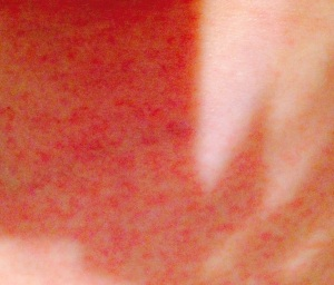 Lovely rash after this morning's shower. Decided a small photo was best. :-)